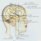 微创神经手术